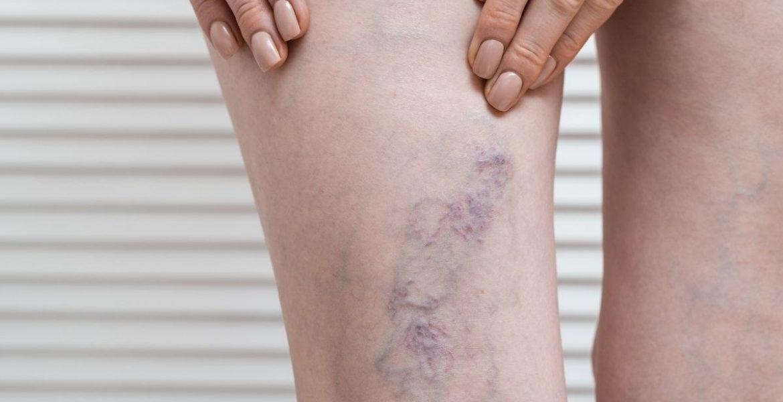 Kobieta przed zabiegiem usuwania żylaków nóg w gabinecie Derm-Estetyka w Gdyni